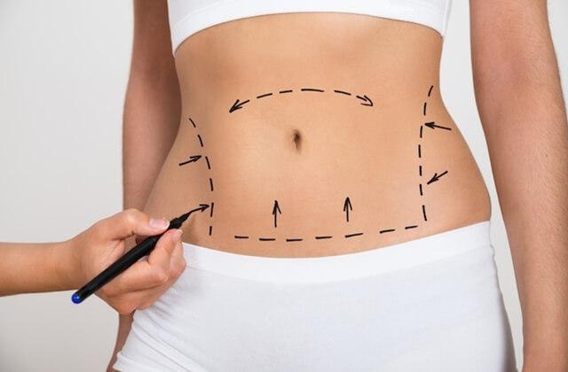 Abdominoplastia - Dra Daniela Cunha - Cirurgia plástica