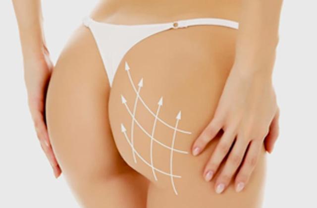 Lifting de Glúteos - Dra Daniela Cunha - Cirurgia plástica