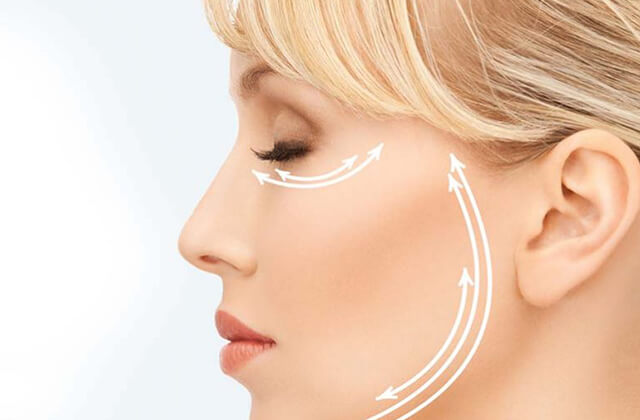 lifting facial - Dra Daniela Cunha - Cirurgia plástica